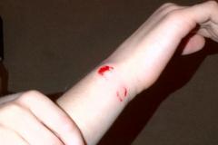 Rex leavers her mark on Harrison after biting him